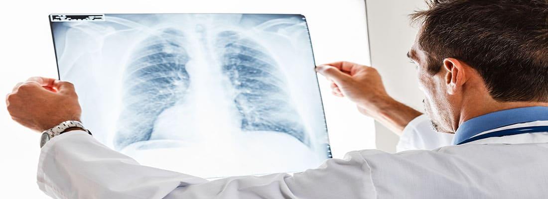 Как победить рак лёгких?