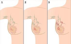 Лучевое лечение рака молочной железы