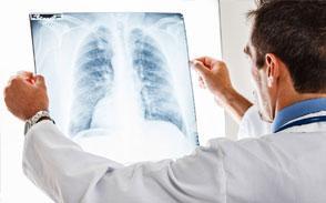 Как победить рак легких