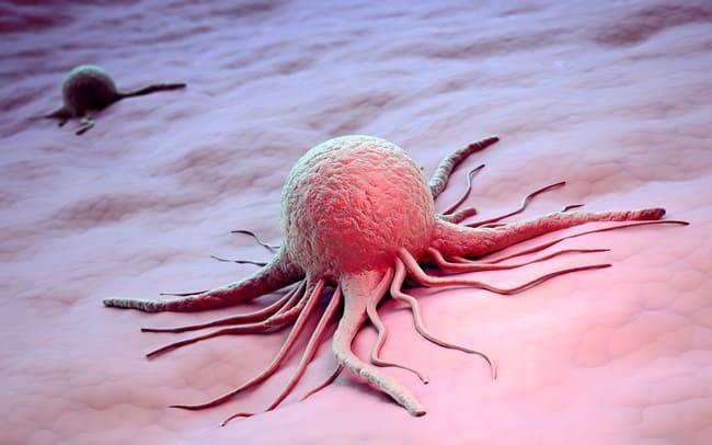 Аденокарцинома – это рак или нет?