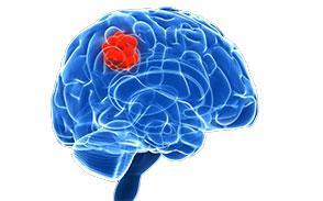 Достаточно ли вы знаете о признаках лимфомы?