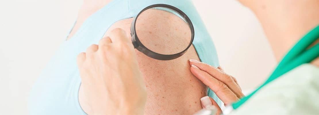 Рак кожи начальной стадии