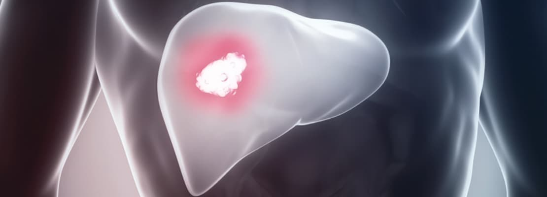 Препараты от рака печени