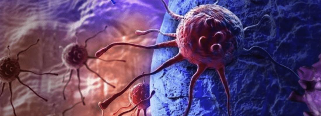 Как определить рак?