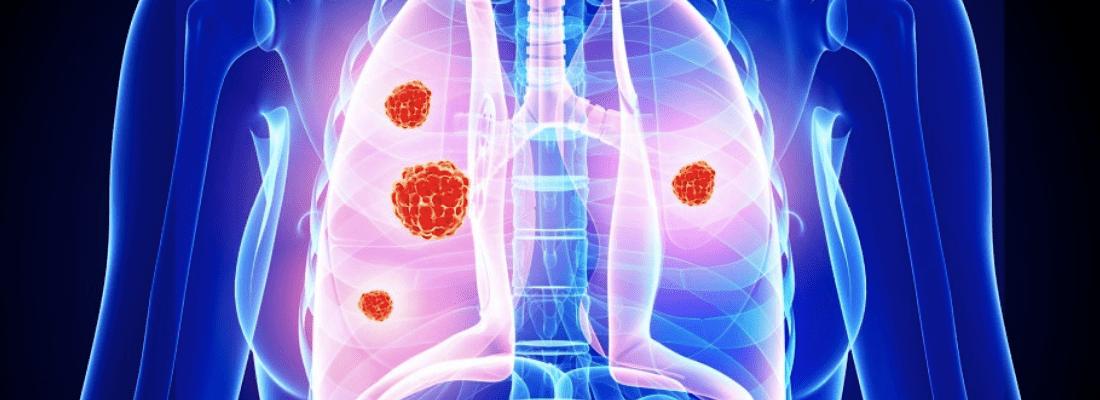 Как определить рак лёгких?