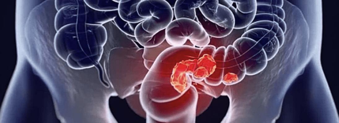 Как понять, что у тебя рак кишечника?